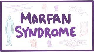 Marfan Syndrome - causes, symptoms, diagnosis, treatment, pathology