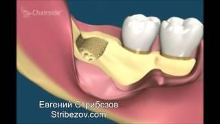 Сложное удаление зуба Спб(, 2017-06-06T21:42:28.000Z)