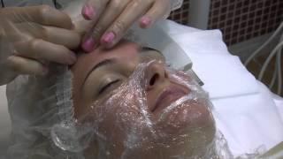 Комбинированная чистка лица: как проходит процедура