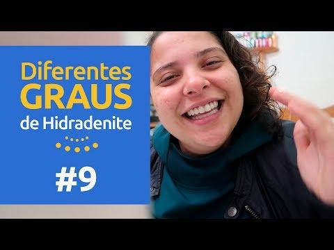 DIFERENTES GRAUS DE HIDRADENITE: Wilians, 38 anos   HS de Boa 09