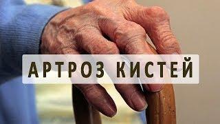 видео Артроз пальцев рук: что это, как проявляется и лечится