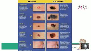 How to Help Detect Melanoma in the Treatment Room with RN Faces, Stephanie Holvick