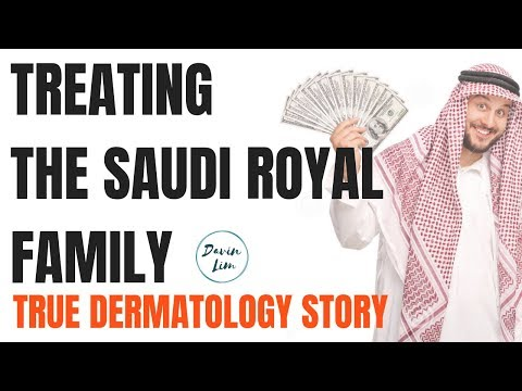 ACNE SCAR TREATMENTS | Treating the Royal Family.