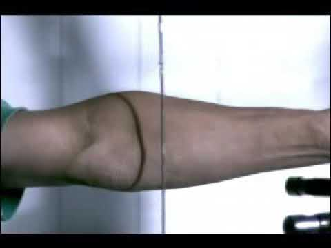 Mala posición del brazo de Arco