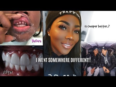 I HAD MY TEETH DONE IN TURKEY FOR CHEAP! I VLOGGED EVERYTHING | NO HORSE TEETH