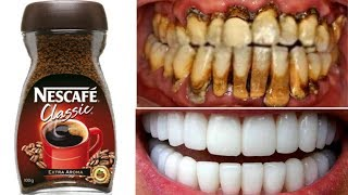 In Just 2 Minutes Turn Yellow Dirty Teeth To Super White | Teeth Cleaning & Whitening at Home