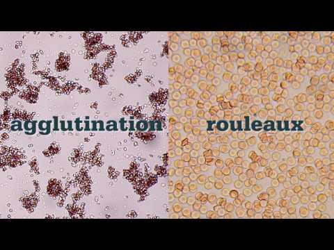 Saline Agglutination Test