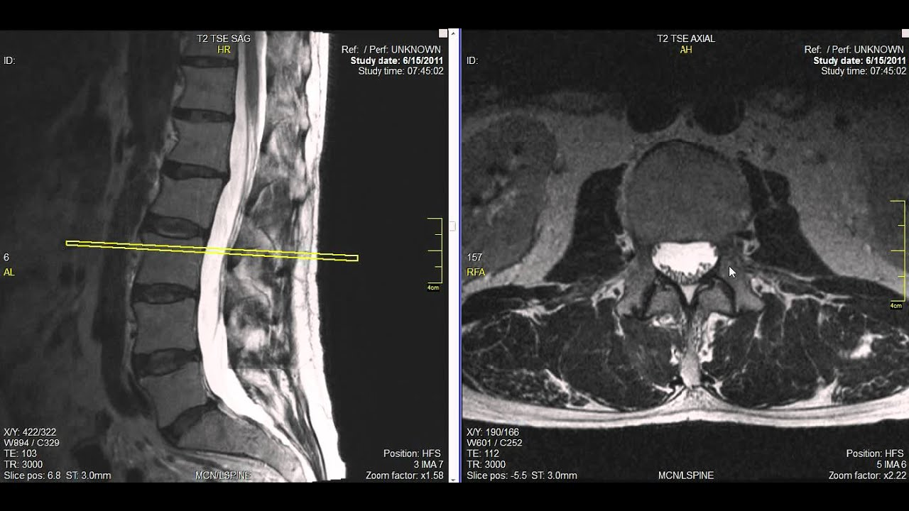 Normal Lumbar Spine MRI Explained | Dr. Jeffrey P. Johnson | HD ...