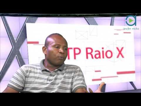 ANDIM TV: 9ª edição do programa  STP Raio X