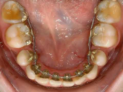 Morphing orthodontie Dr SEYED MOVAGHAR Paris 15