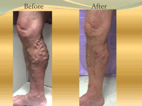 how to get rid of veins on legs without surgery