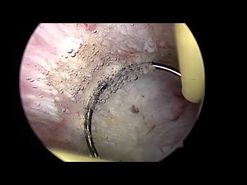 Hysteroscopic endometrial ablation