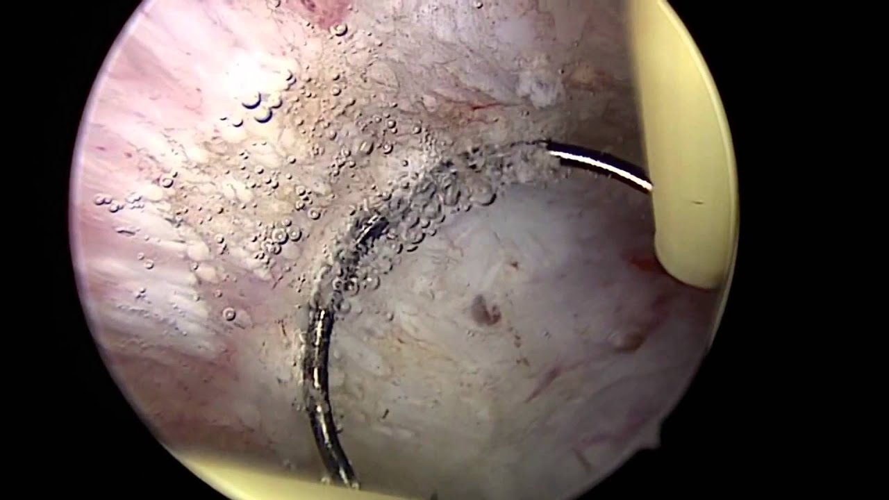 Related Keywords & Suggestions for hysteroscopy endometrial ablation