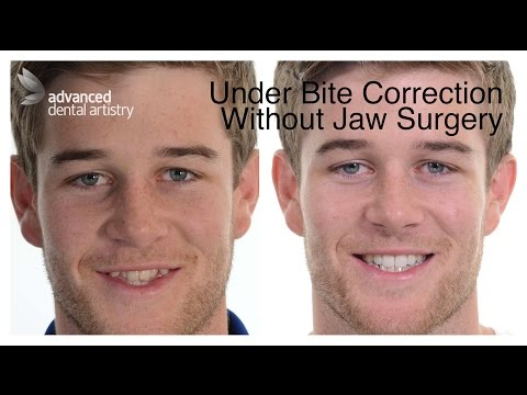 Under-Bite Non Surgical Cosmetic Treatment - Shaun's Transformation March 2017