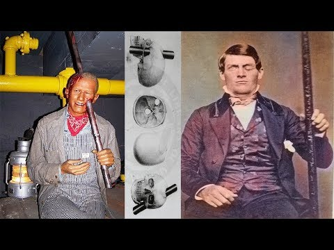 The Amazing Story of Phineas Gage