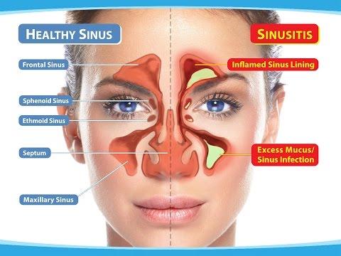 Tienes Dolores de Cabeza por Sinusitis, aqui tienes Remedios Caseros para Curar la Sinusitis