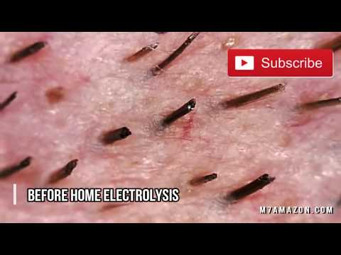 Laser Hair Removal; Does Home Electrolysis Work?