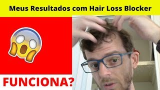 Hair Loss Blocker Funciona Mesmo? Onde Comprar Hair Loss Blocker!