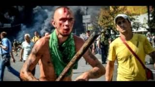 «Напали, как стая собак» Британские болельщики рассказали, как их избили в Киеве