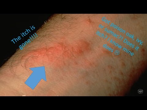 How To Make Your Poison Oak, Ivy, Or Sumac Rash Stop Itching