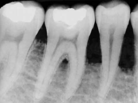 Healthy Socket After Extraction
