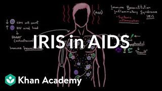 Immune reconstitution inflammatory syndrome (IRIS) in AIDS | NCLEX-RN | Khan Academy