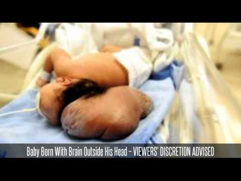 baby-born-with-brain-outside-his-head----viewers'-discretion-advised