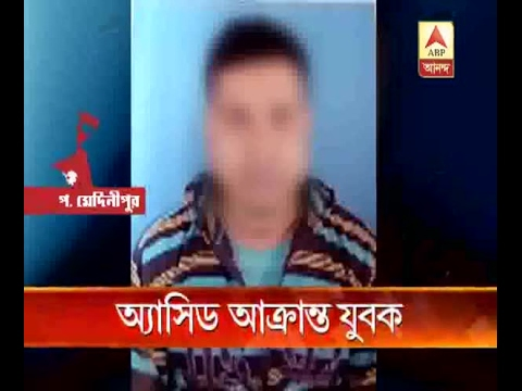 Acid attack upon a youth at Ghatal