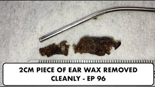 2CM PIECE OF EAR WAX REMOVED CLEANLY - EP 96