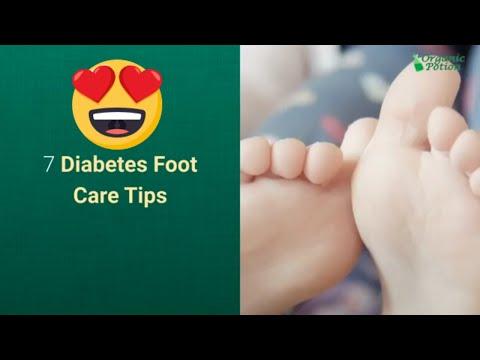 7-diabetes-foot-care-tips