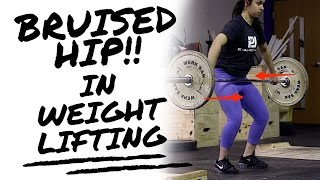 Fixing the Bruised Hip in Weightlifting