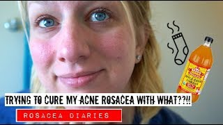 A Natural Treatment For Acne Rosacea??! | Rosacea Diaries | Trying Apple Cider Vinegar Part 1