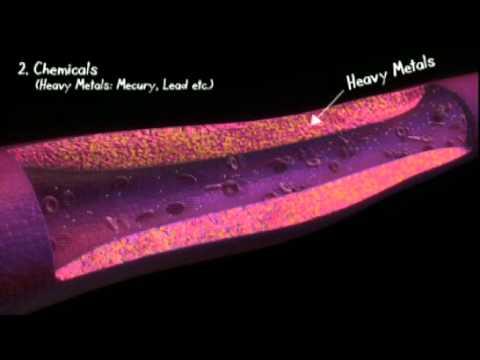 Cardiovascular Disease - Part 2