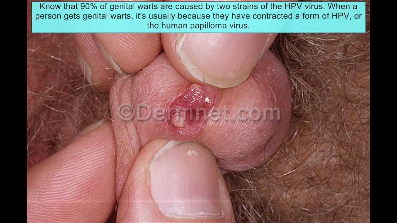 What to Do if You are Suffering From Urethral Warts