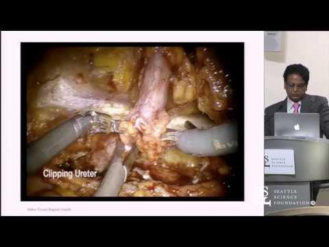 Robotic Nephroureterectomy by Ashok Hamal, M.D.