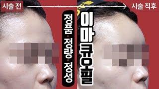이마필러, 이마, 미간보톡스 시술 영상 톡스앤필 홍대신…