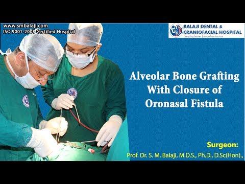Alveolar Bone Grafting With Closure of Oronasal Fistula