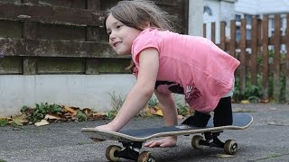 Inspirational 7 Year Old Girl Skateboards With No Legs