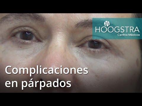 Complicaciones en párpados (16161)