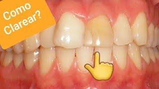 Dentista Clarear Os Dentes