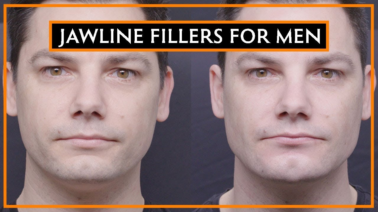 How Dermal Fillers Can Change Your Jawline