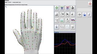 Points d'acupuncture Metatron Hunter thérapie et analyse comparative
