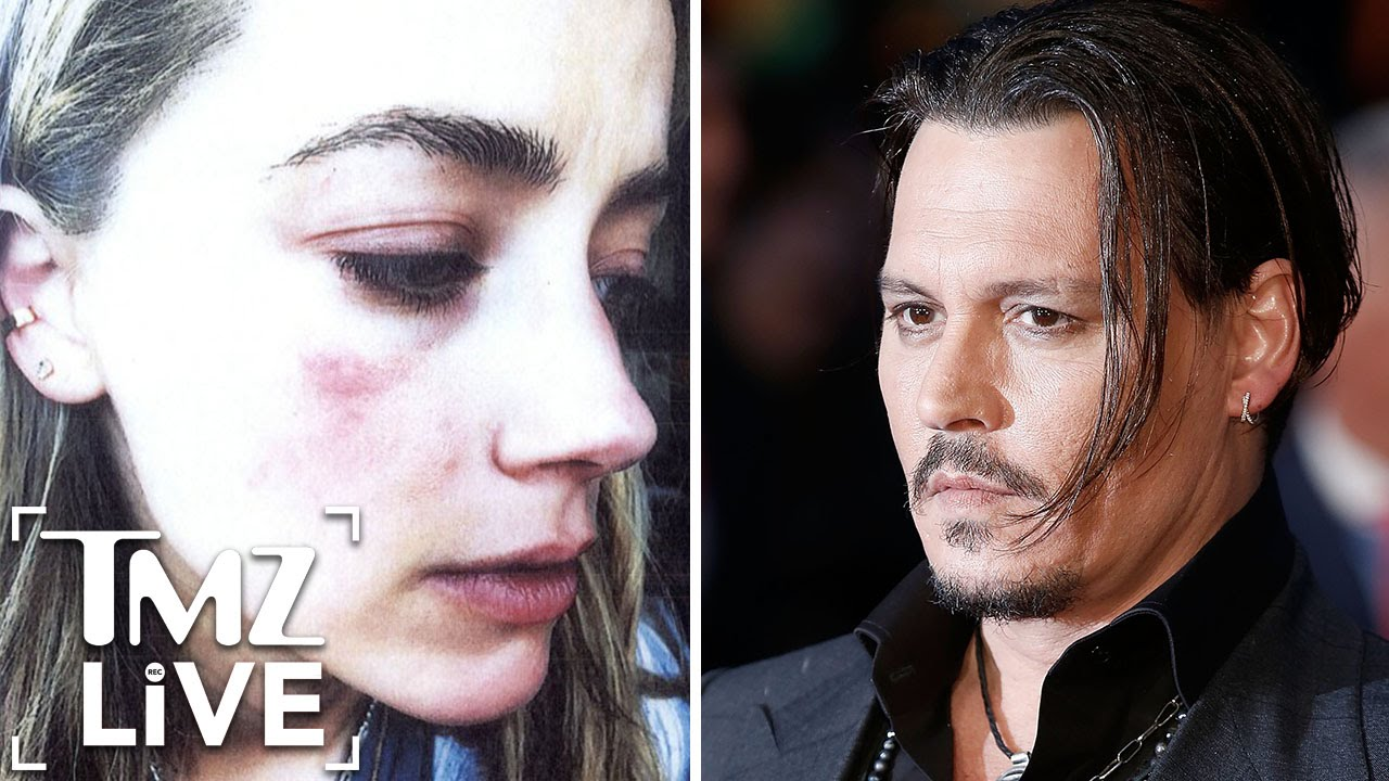 Image result for Johnny depp Amber Heard domestic violence