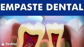 Tratamiento caries - Restauración con composite ©