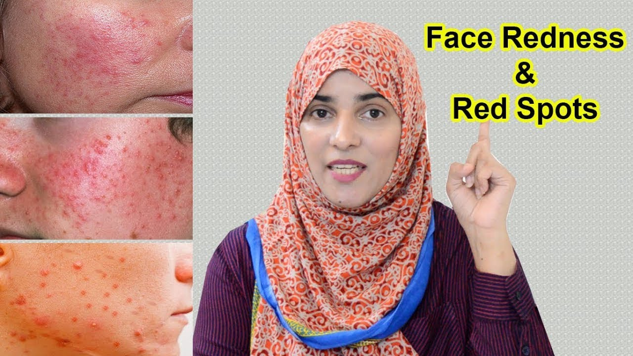 6 Remedies for Red Spots, Face Redness & Red Bumps  || 30 Days Skincare Guide (Day 26).......ENG SUB