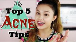 hqdefault - Top 5 Acne Treatment Tips