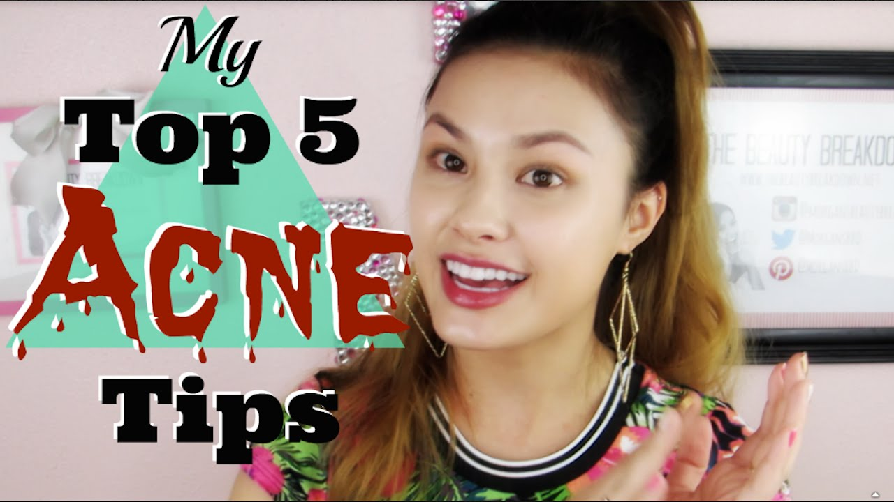 MY TOP 5 ACNE TIPS | How to Treat & Prevent Acne and Acne Scars