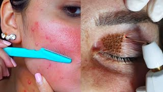 55 Extreme Smart and Helpful Beauty Treatments For Girls, MakeUp Tricks and More!