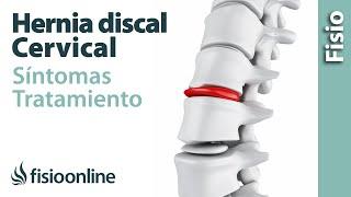 Hernia discal o de disco cervical - Qué es, causas, síntomas y tratamiento
