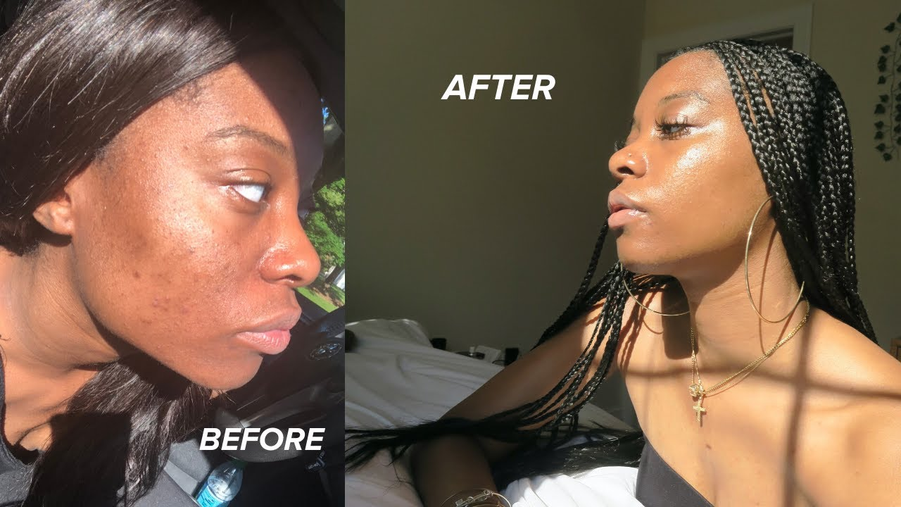 Download Skincare Routine 2020 | How I Faded My Acne Scars and Eczema *Black Girl Approved* (Thank you Hyram)